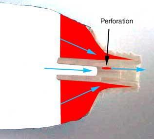Intra science comment sont faites les rayures du for Interieur paupiere inferieure rouge
