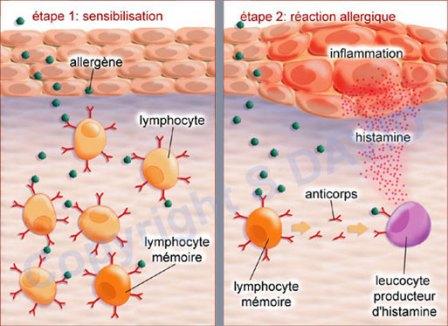 histamine allergie